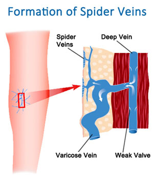 Injection Sclerotherapy For Spider Veins Ava Nj