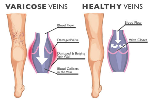 Healthy Vs Varicose Veins